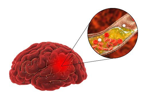 Blood Clot that leads to Stroke | Photo: Getty Images