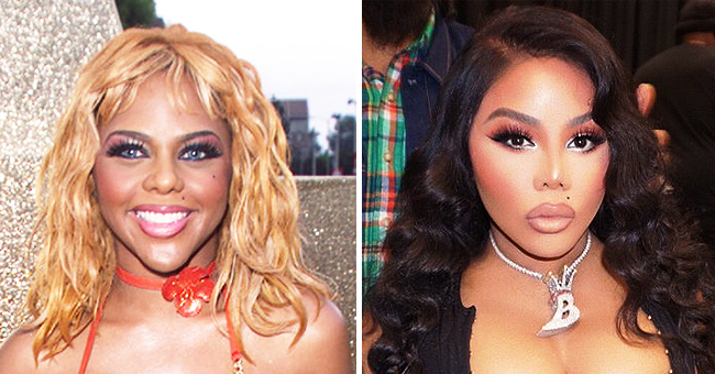 What Lil' Kim May Have Done to Her Face, According to Plastic Surgeons