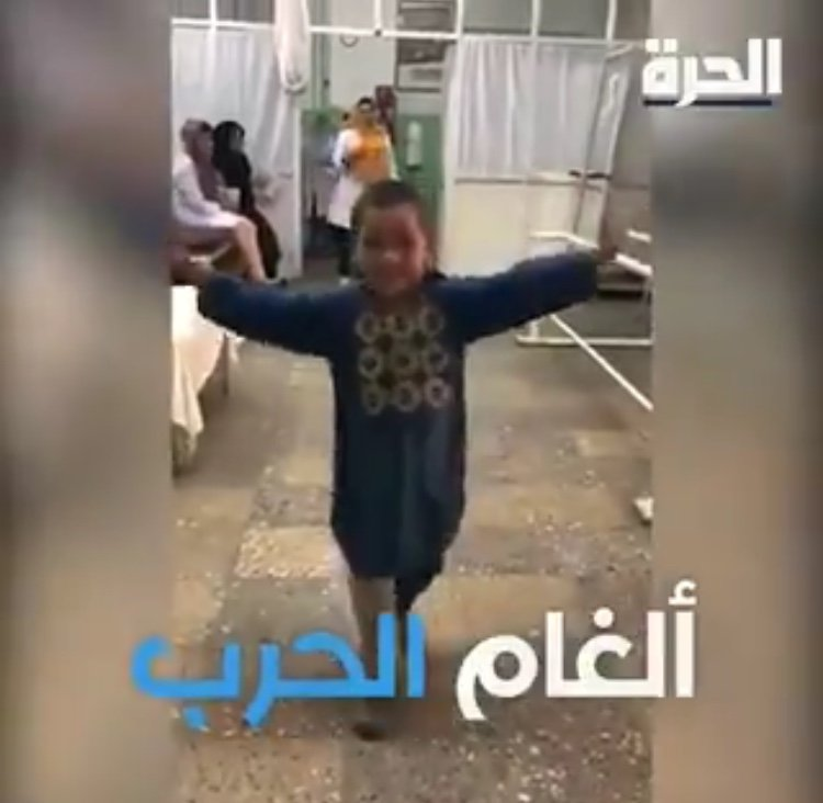Junge tanzt mit Prothese | Quelle: Facebook/@uniladmag