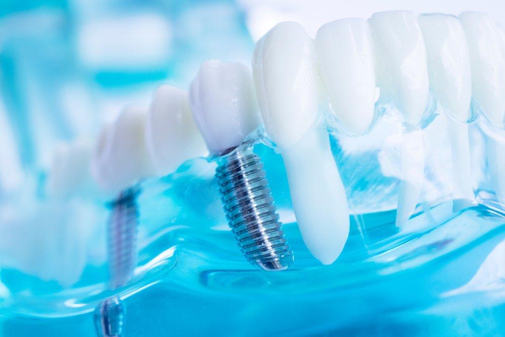Gros plan d'un modèle de dents avec une vis. | Shutterstock