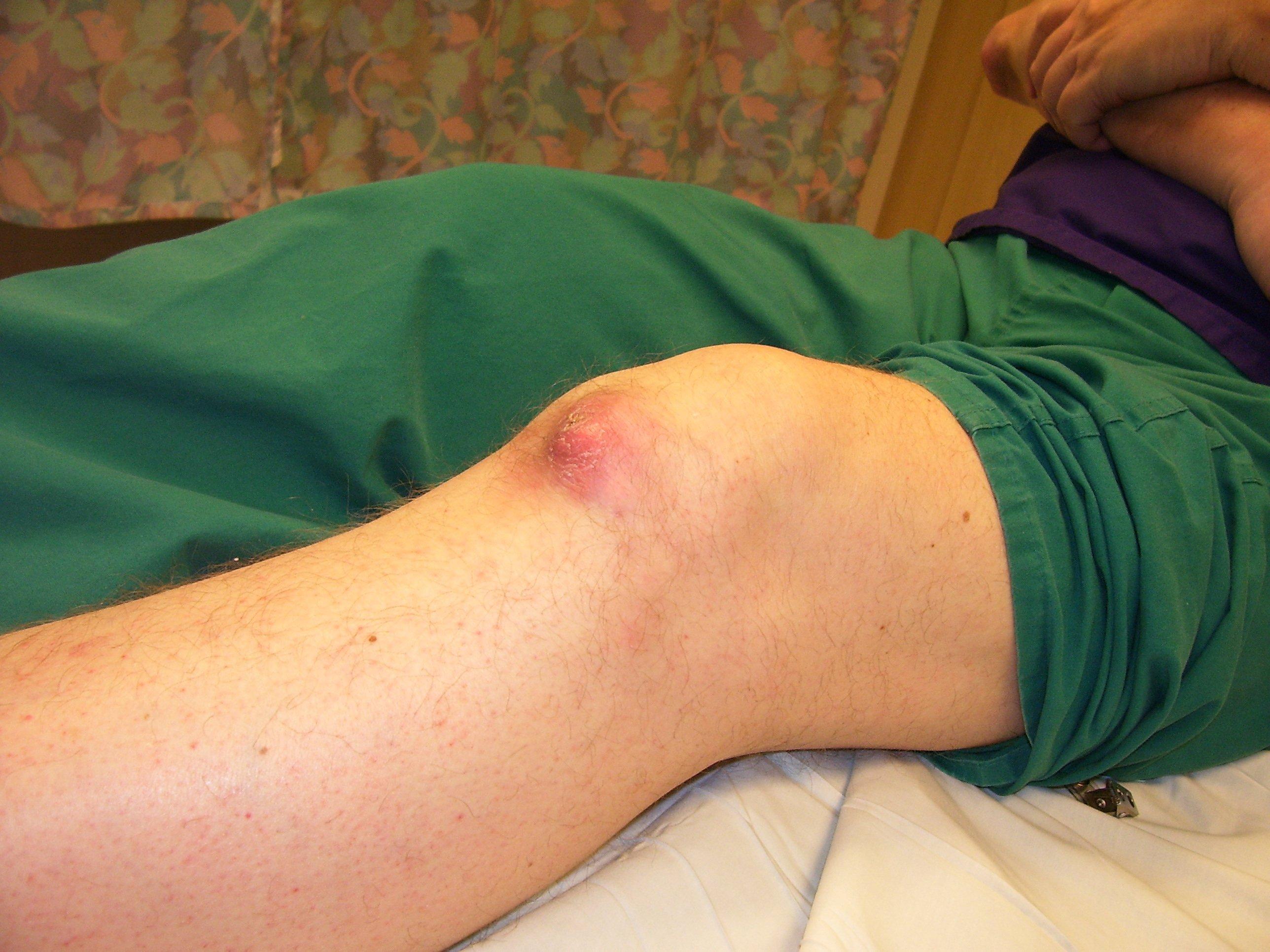 Tofo gotoso en rodilla. Fuente: Wikimedia Commons