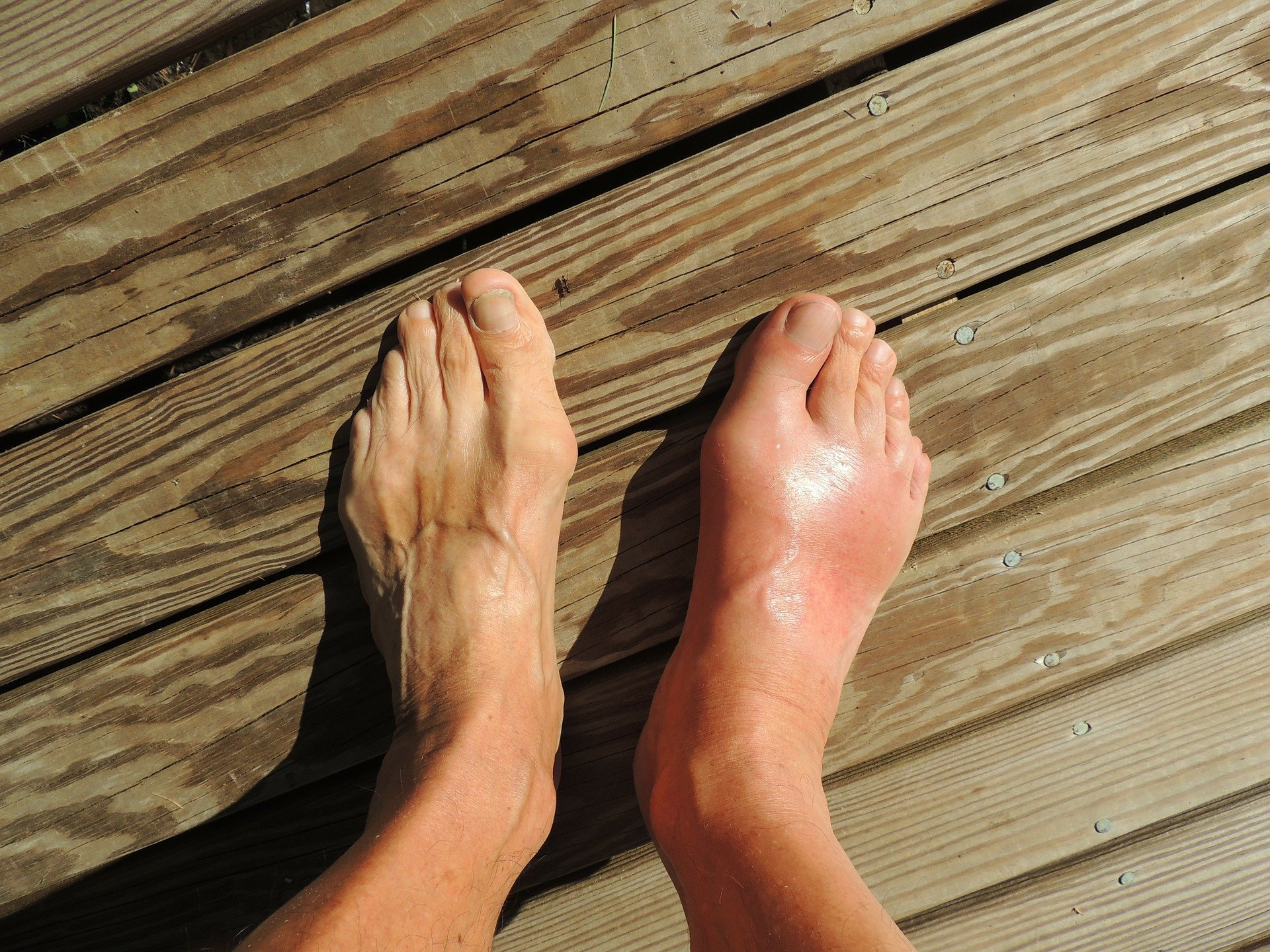 Geschwollene Füße | Quelle: Pixabay