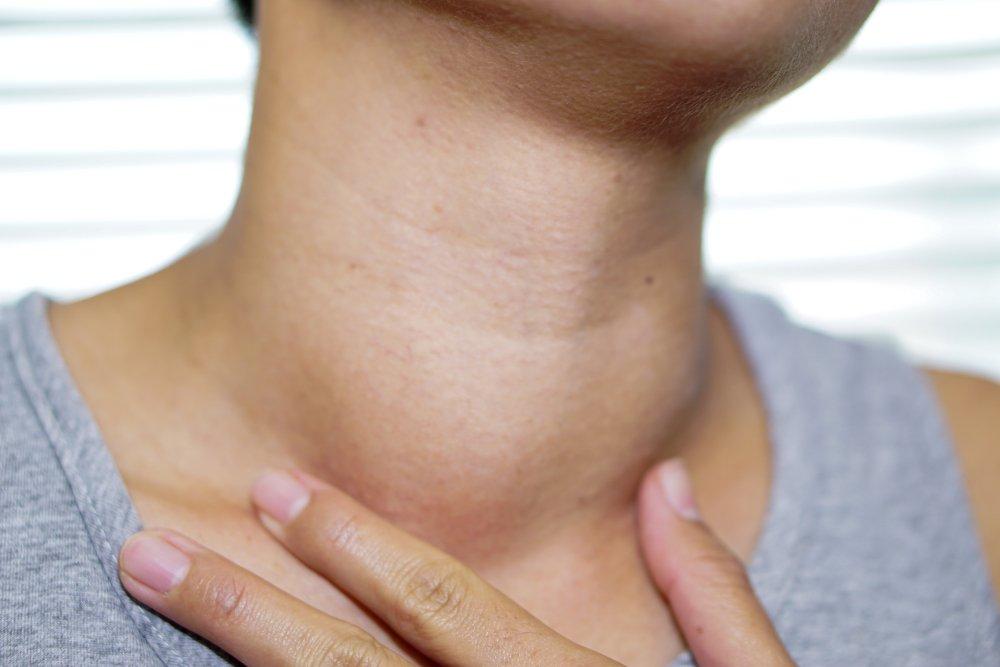 Une femme avec une grosseur suspecte dans le cou | Source : Shutterstock