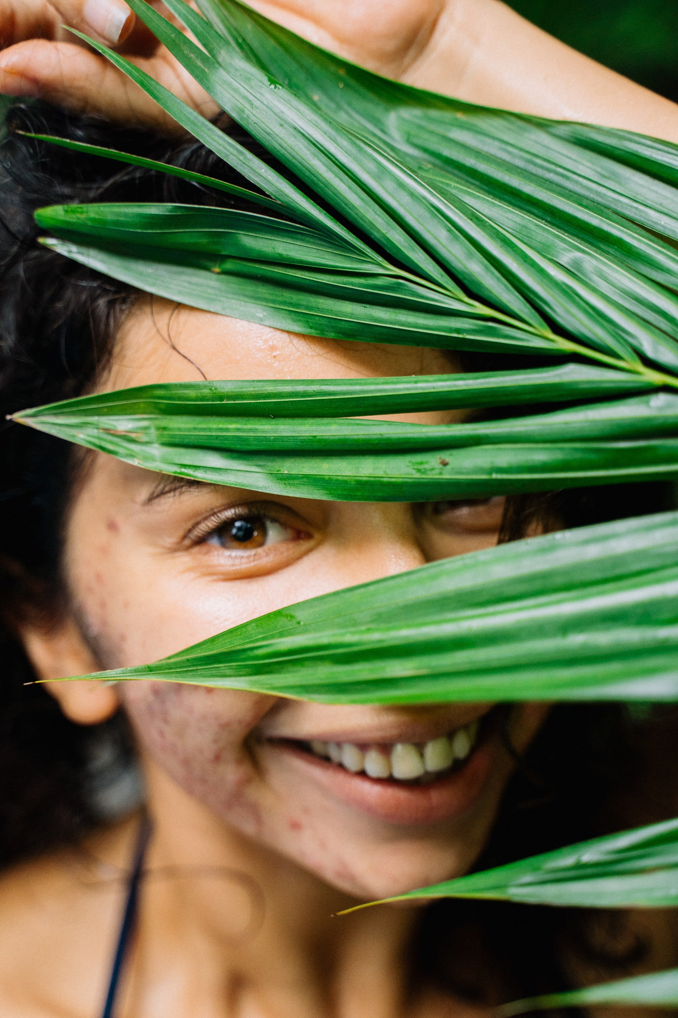 Pictured - A woman with skin irritation grinning behind green leaves. | Source: Pexels