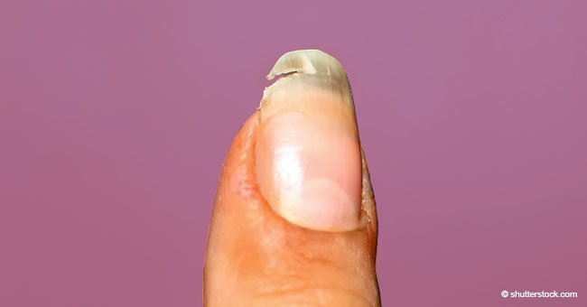 Broken Nail? This Easy Trick Will Help You Fix It Quickly