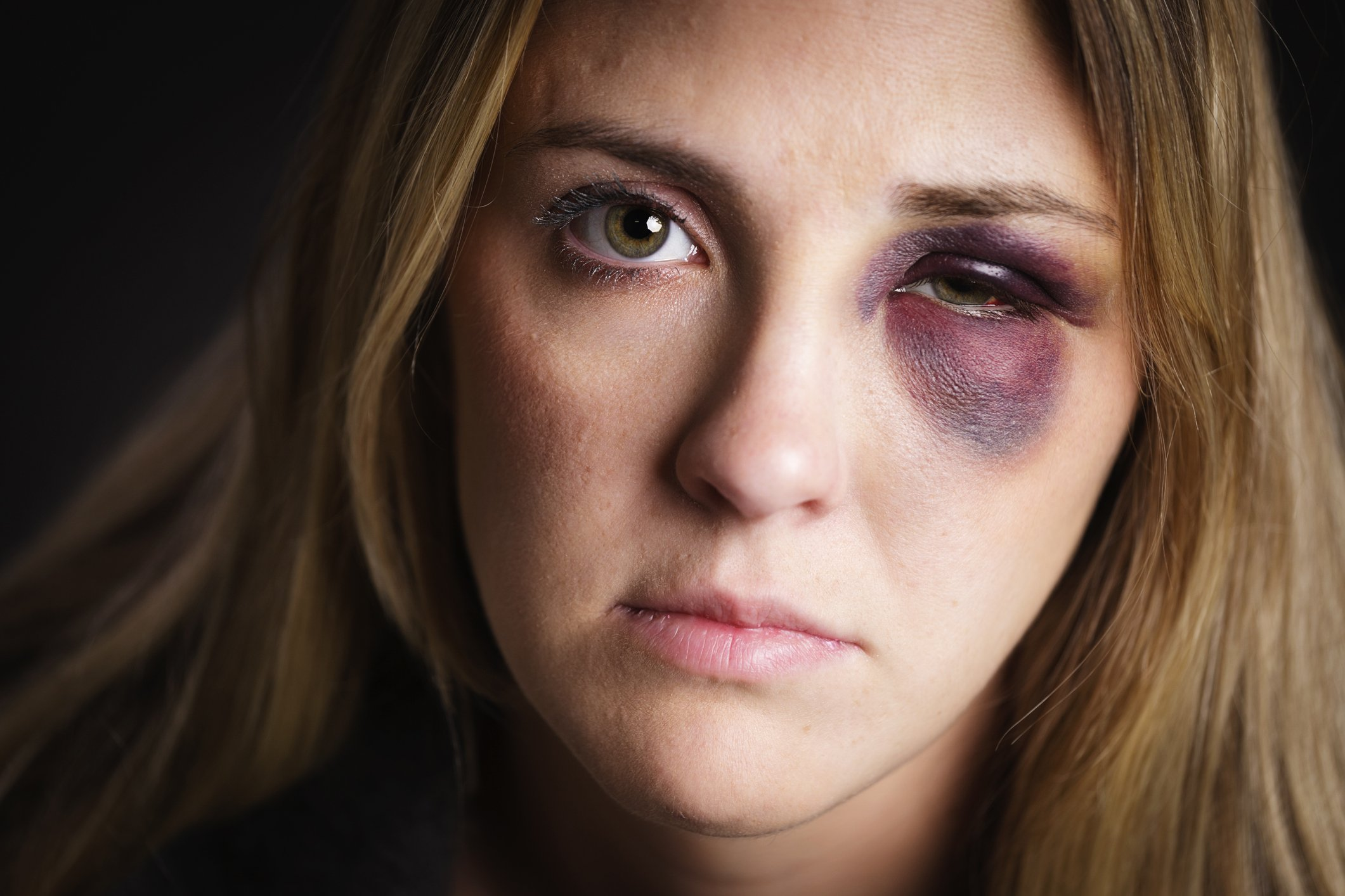 A pretty young blond woman with a black eye. | Photo: Getty Images.