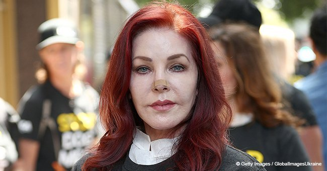Priscilla Presley has a bandage over her nose as she holds dead dog in her hands