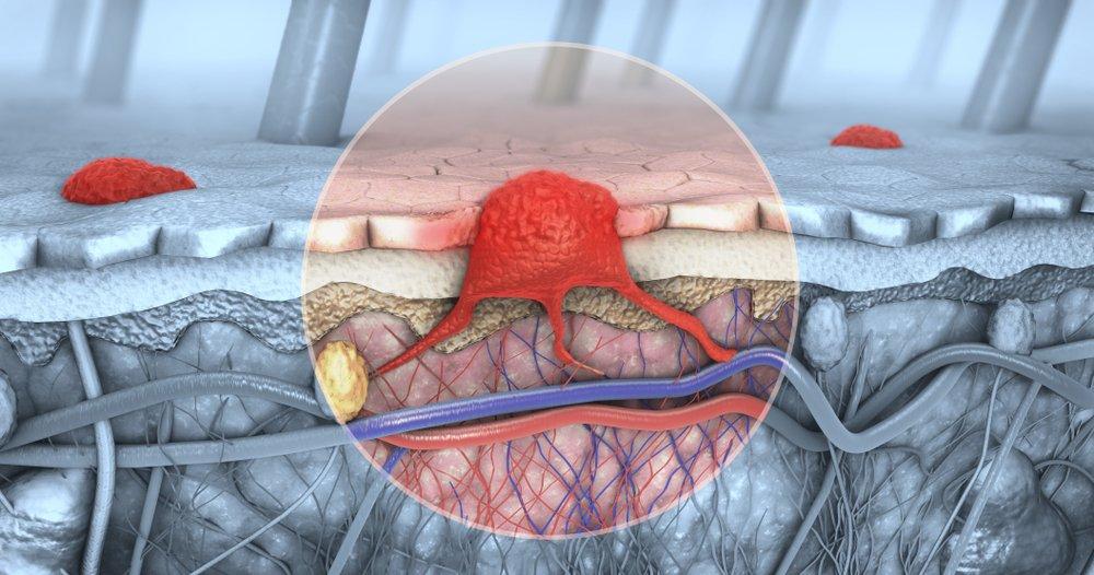 Illustration 3D d'une coupe transversale d'une peau atteinte d'un mélanome qui pénètre dans le sang et les voies lymphatiques. Photo : Shutterstock