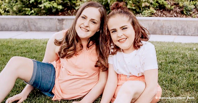 Jumelles siamoises : L'histoire difficile des filles qui ont été séparées il y a 17 ans pour vivre individuellement