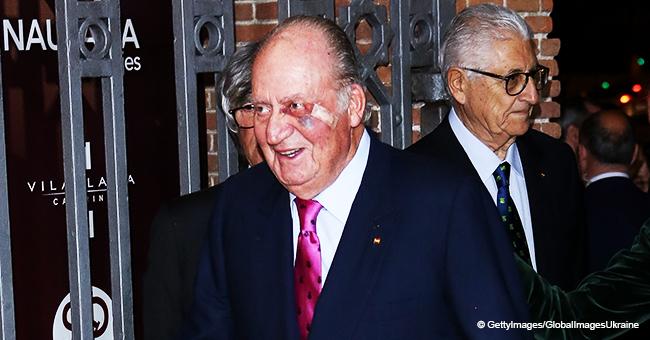 Don Juan Carlos reaparece en público con un ojo morado tras someterse a una operación