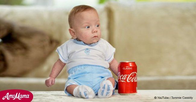 Britain's smallest baby has survived despite being the size of a soda can at birth