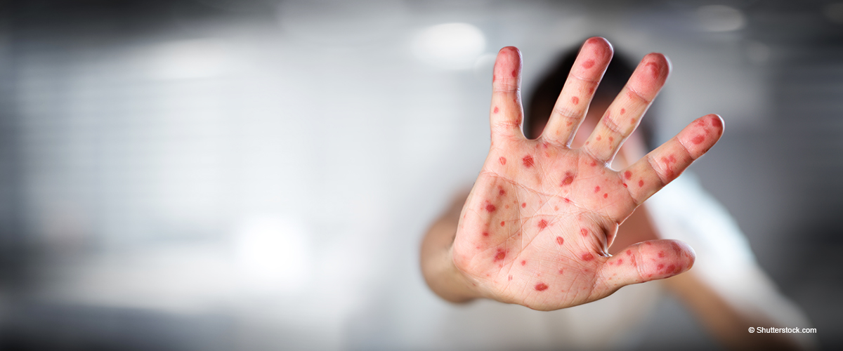 Measles Breaks Modern Records with 704 Reported Cases