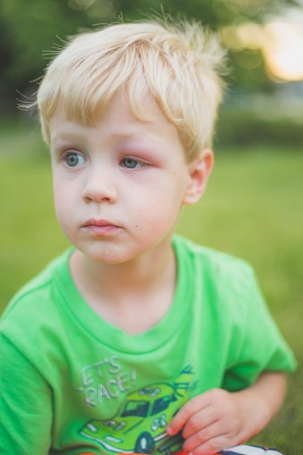 Photo of a little boy with bond hair and a black eye sits outside   Photo: Getty Images