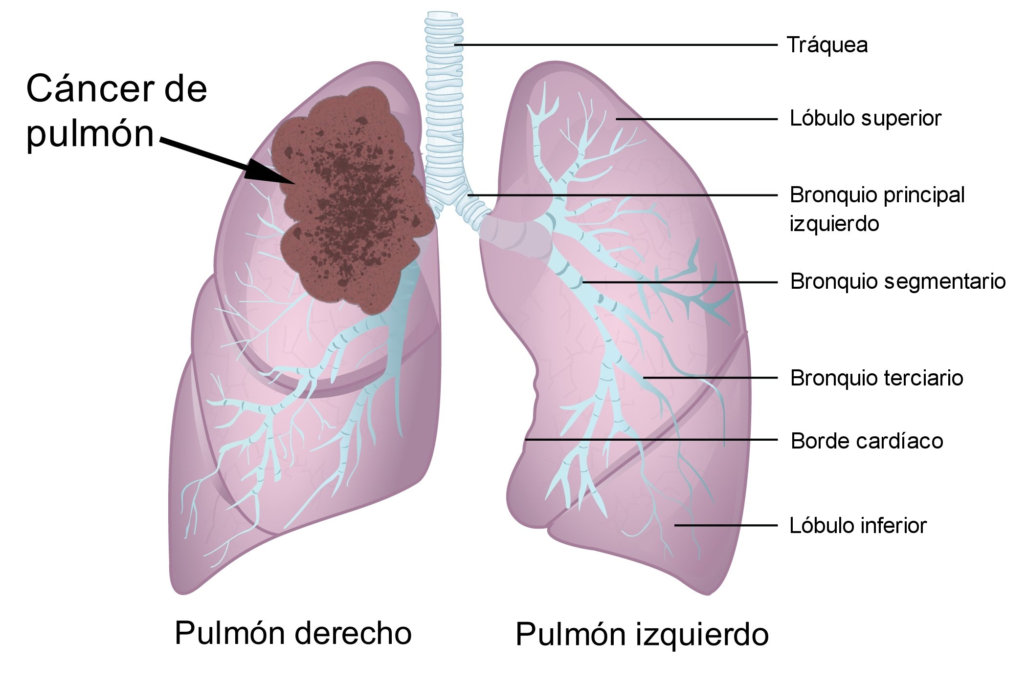Infographie pulmonaire avec cancer. | Photo : Wikimedia