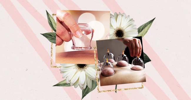 Exploring The Benefits Of Cupping Massages
