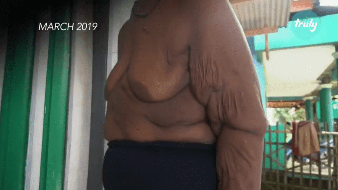 Arya Permana during his weight loss journey, in his home | Photo: Youtube/Barcroft Tv
