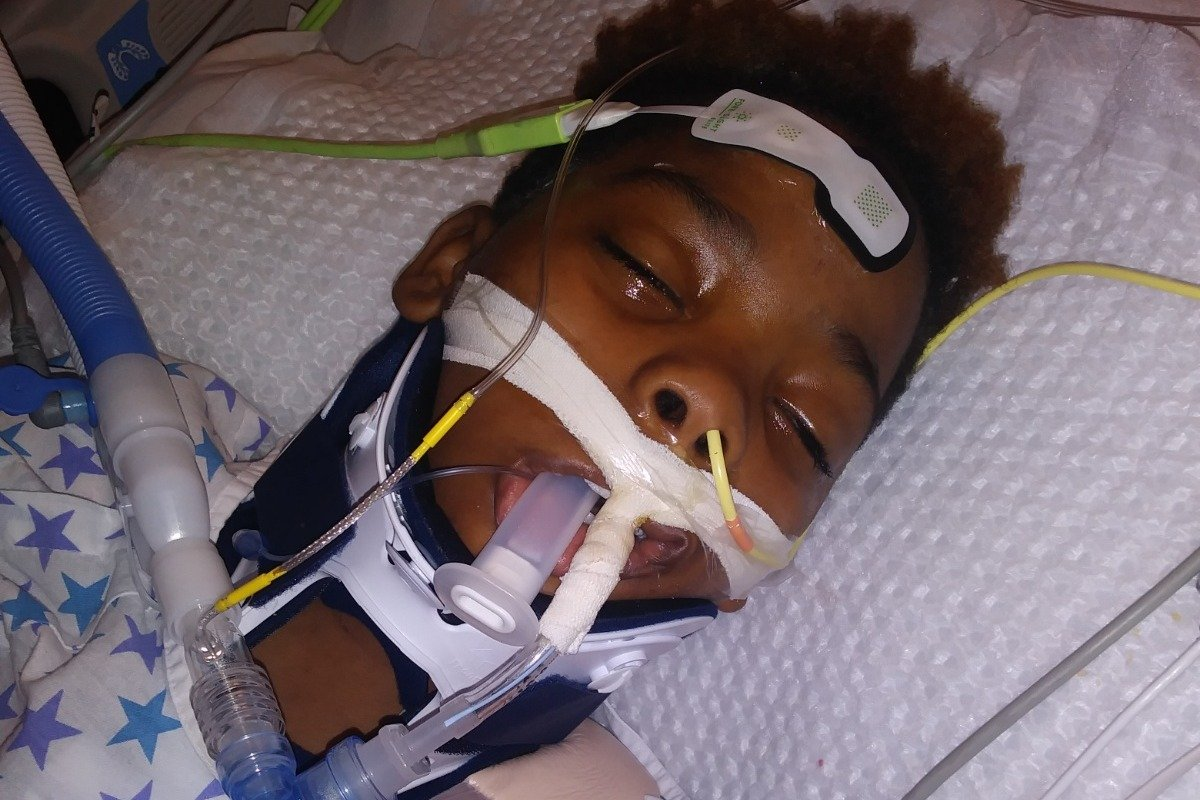 Jamari Dent on life support at the hospital. | Photo: GoFundMe/Tierra Black