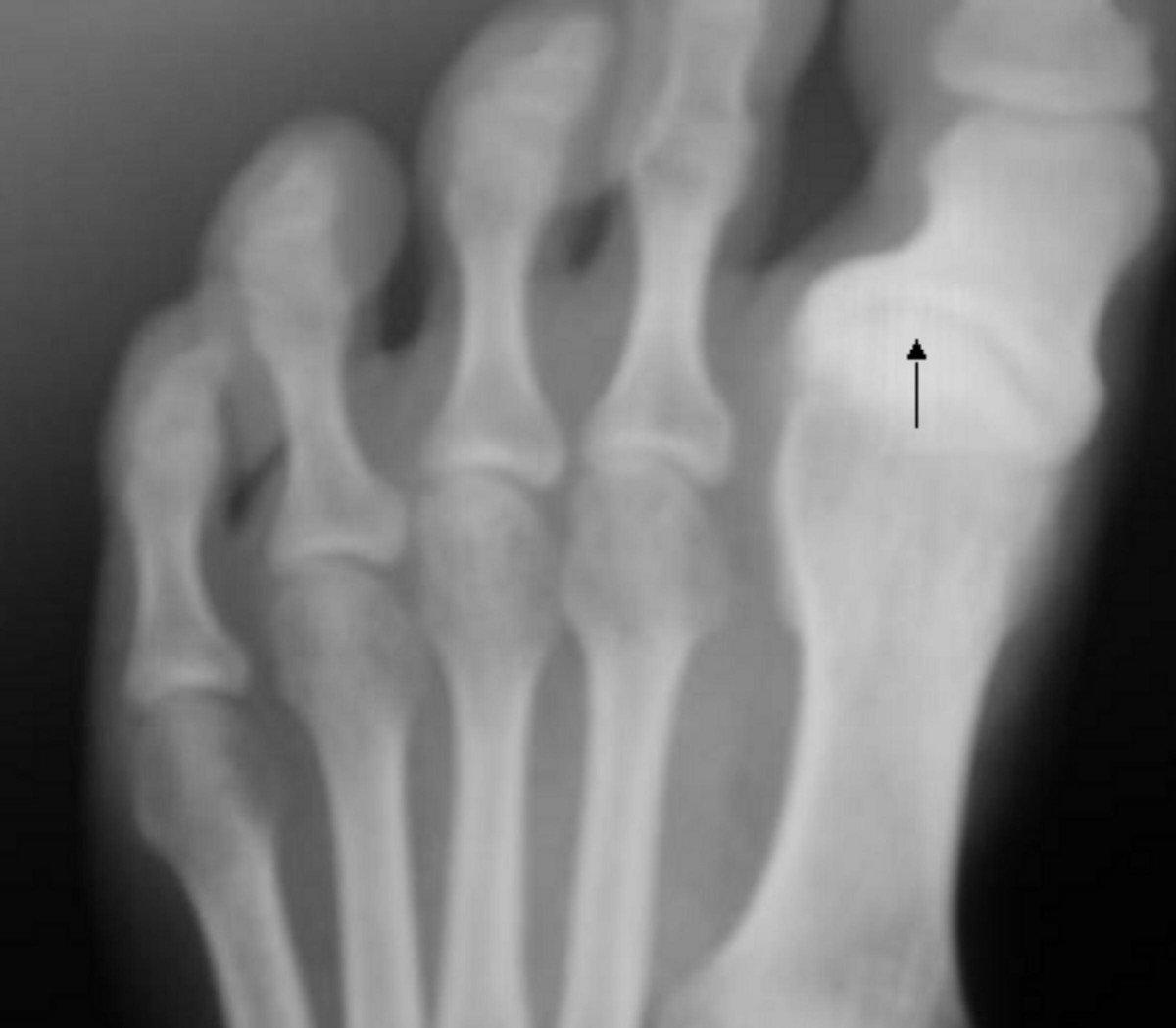 Un pied atteint de l'arthrose. | Wikimedia Commons