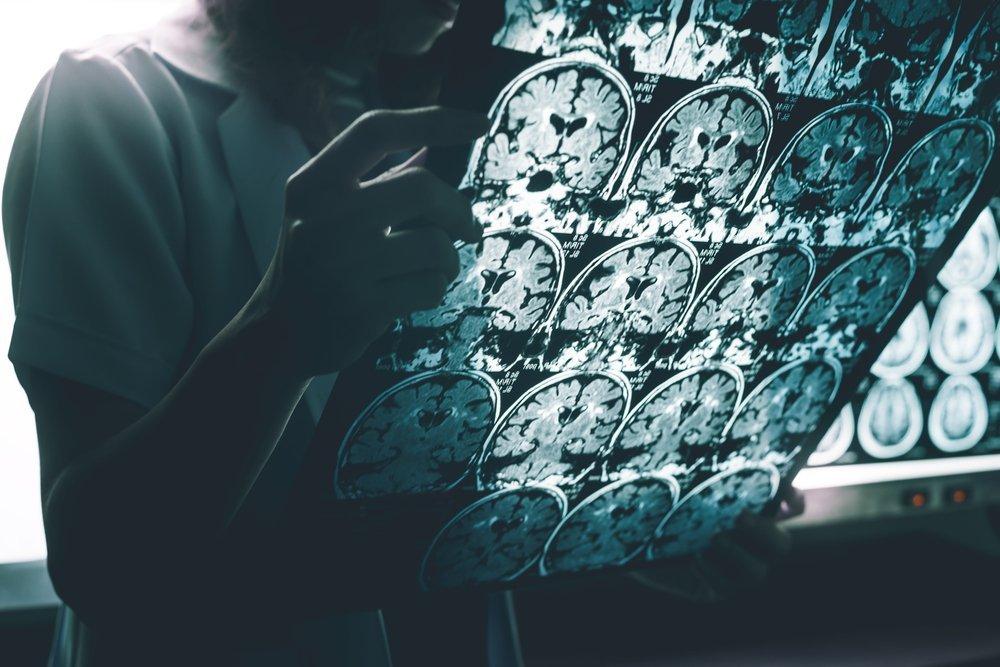 La maladie d'Alzheimer à l'IRM. | Source : Shutterstock