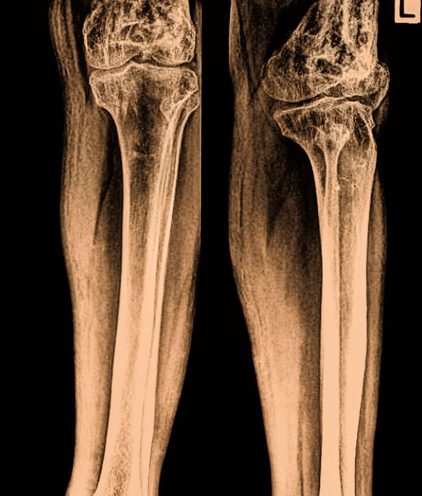Des os de jambes.   Photo : Shutterstock.