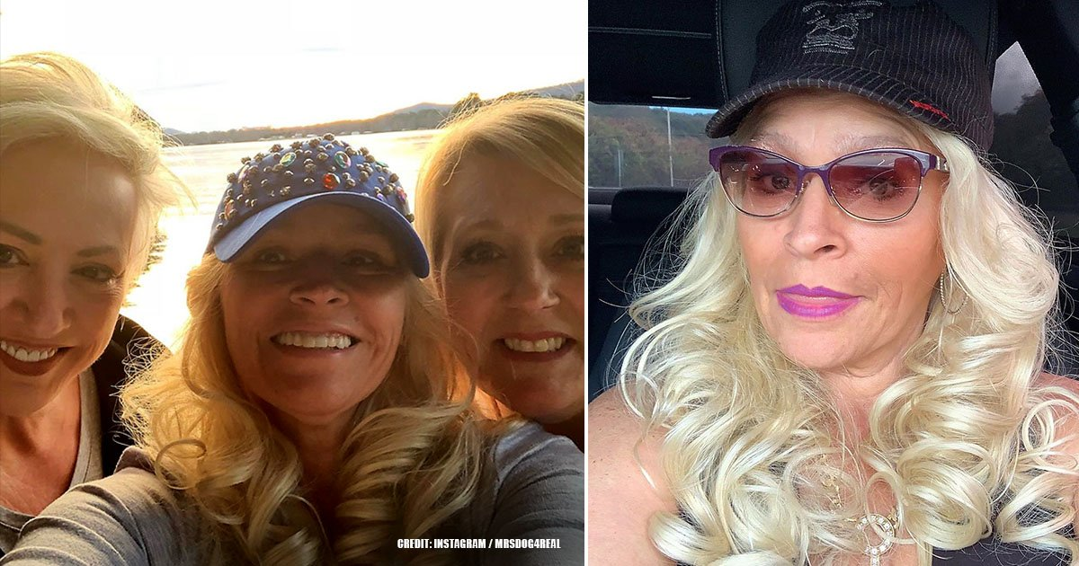 Beth Chapman's Weight Loss Journey: How It Was Before The Diagnosis