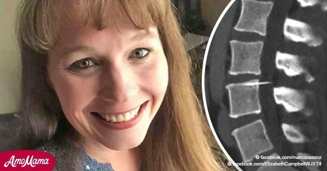 Die Untersuchung im Krankenhaus zeigte einen vorherigen furchtbaren Fehler: Die Frau hatte 14 Jahre lang eine Nadel in ihrer Wirbelsäule