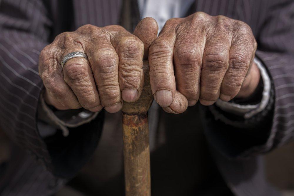 Manos de un hombre anciano. | Foto: Shutterstock