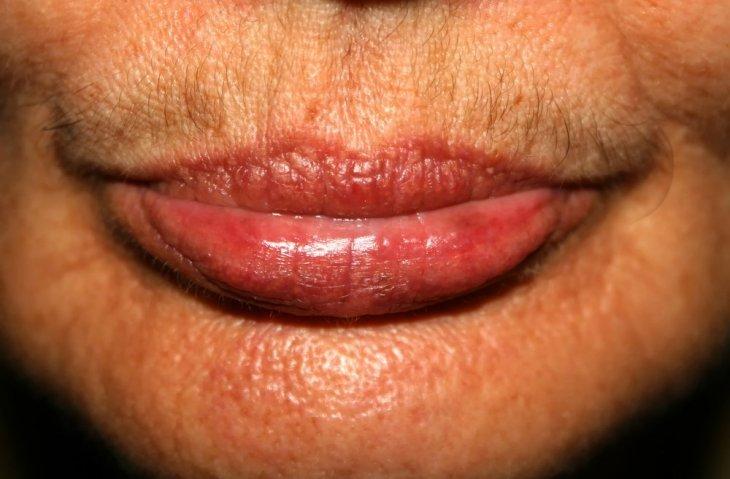 Vellos faciales en mujer. | Imagen: Shutterstock
