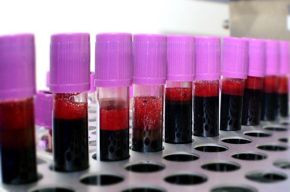 Transfusión de sangre| Foto: Pixabay