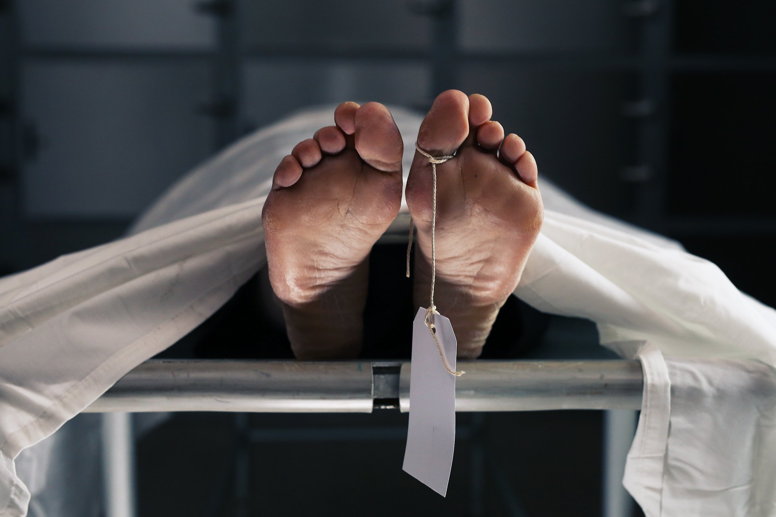 Body on a morgue table with a toe tag. | Source: Shutterstock