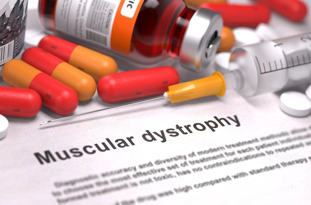 Diagnóstico impreso de distrofia muscular. Fuente: Shutterstock