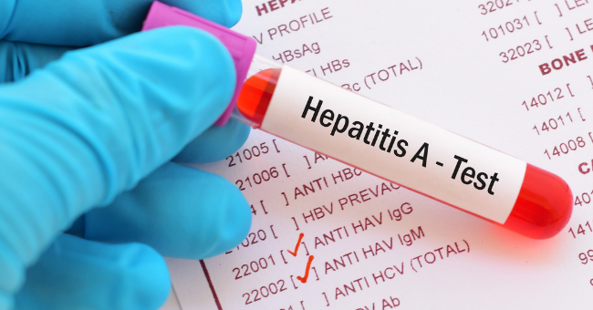Health Officials Warn of Possible Hepatitis A Outbreak
