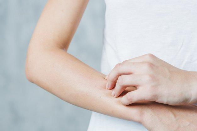 Persona con picazón de piel | Imagen tomada de: Freepik