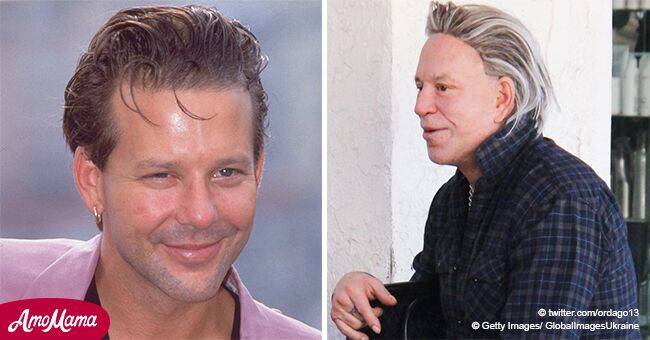Mickey Rourke Looks Unrecognizable at 67 after Plastic Surgery