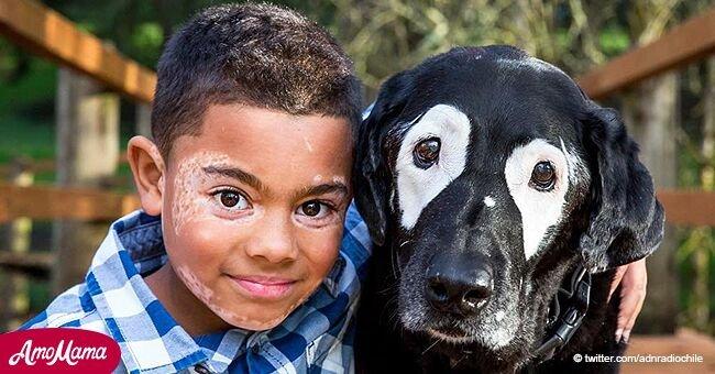Un chien a aidé un petit garçon atteint de vitiligo à se regarder dans le miroir et à se sentir normal