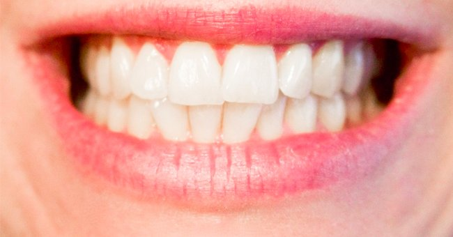 An image of a lady's teeth | Photo: Pxhere