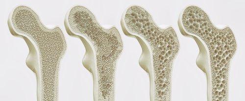 Ostéoporose | photo: shutterstock