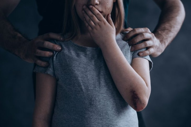 Une jeune fille blessée et effrayée. l Source: Shutterstock