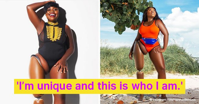 The Story of Black model and Amputee Learning to Love Her Body