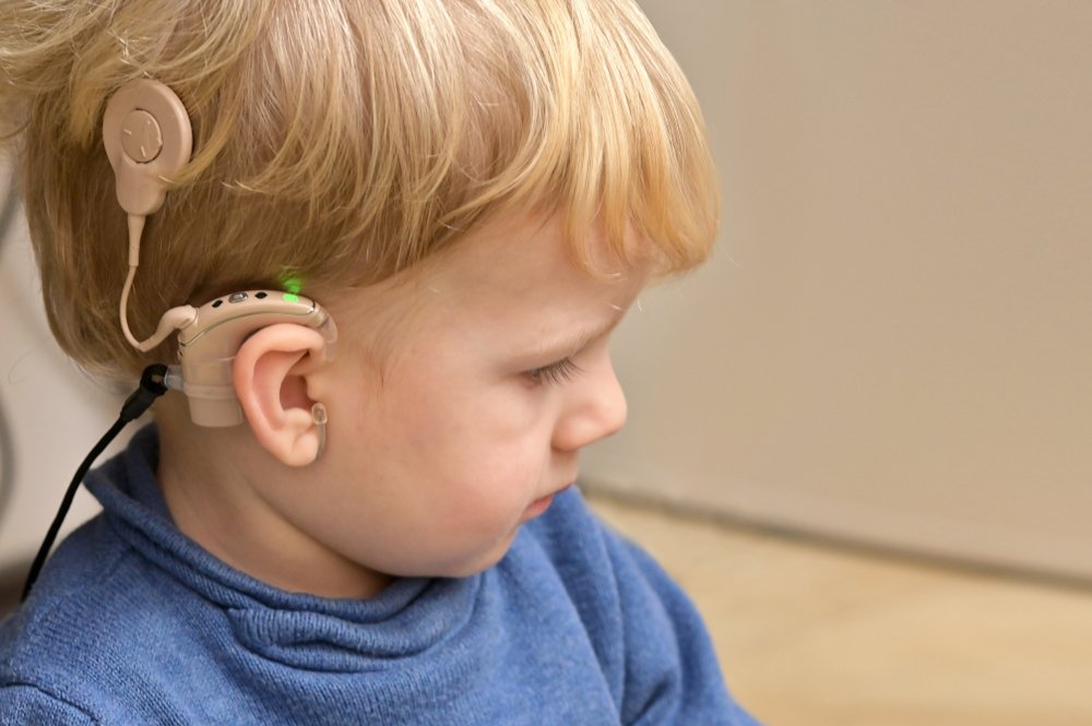 They fitted him Richard a Cochlear implant.  Source: Shutterstock