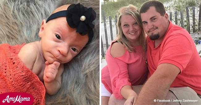 Baby girl born weighing just 14.5 ounces with 20% chance of survival is doing well