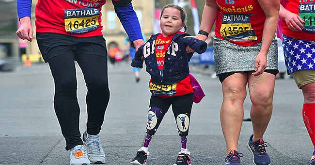5-Year-Old Girl Does Gymnastics & Half-Marathons despite Having Lost Limbs to Meningitis