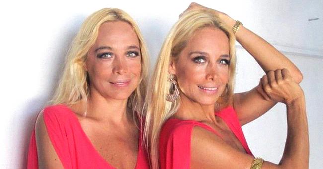 Trastorno bipolar y psiquiátrico: por qué las gemelas Ivonne e Ivette dejaron los escenarios