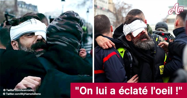 Jérôme, un Gilet Jaune, blessé à la tête par un projectile en direct (Vidéo)