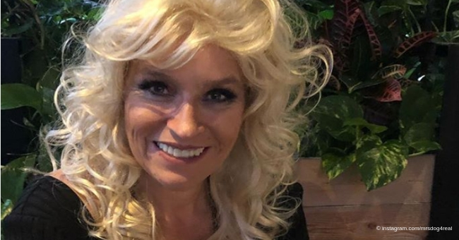 A Glimpse Into Beth's, the Wife of Dog the Bounty Hunter, Long Battle With Stage 4 Cancer