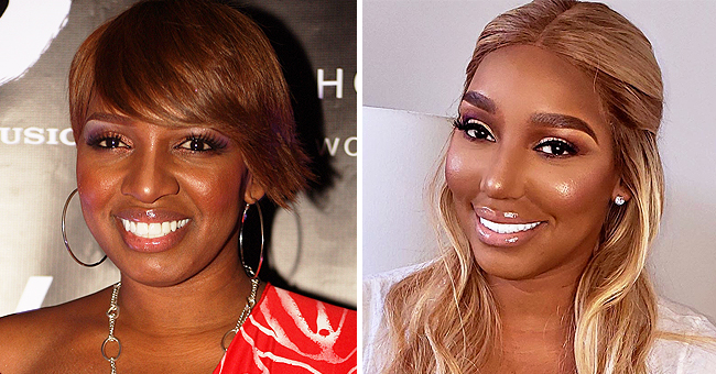 RHOA Star Nene Leakes Admits She Wants More Plastic Surgery on the 'Wendy Williams Show'