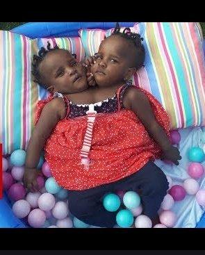 Gemelas siamesas Marieme y Ndeye. | Foto: YouTube/BBC News