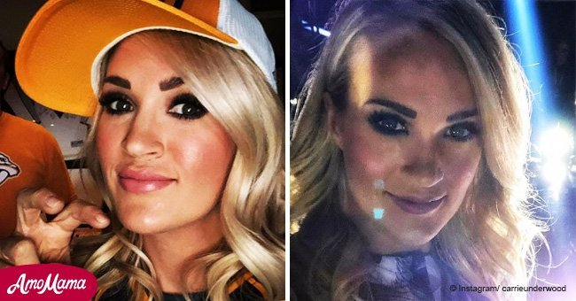 Carrie Underwood reveals the facial scars above her lip in a new photo
