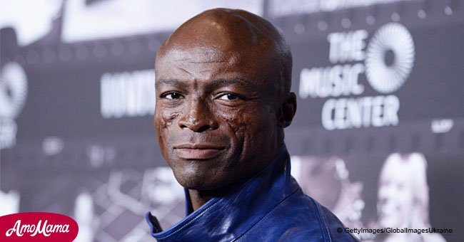 The Story behind Singer Seal's Facial Scars