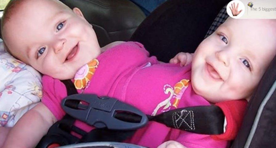 Macy y McKenzie, las gemelas unidas, cuando eran unas bebés. | Foto: YouTube/The 5 biggest - Montreal TV